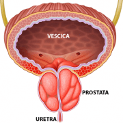 prostata ingrossata