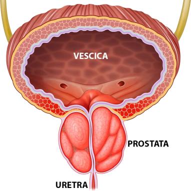 Mi a betegség prosztatitis